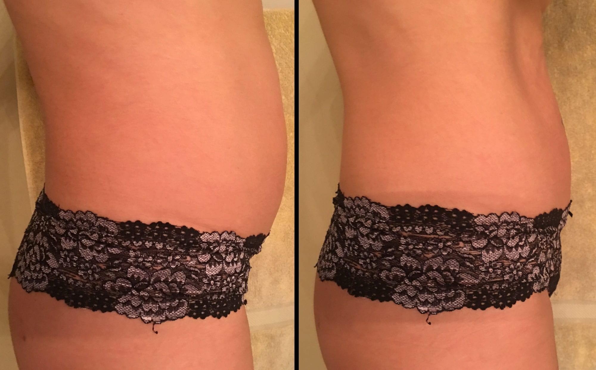 Body Contouring Rockville MD