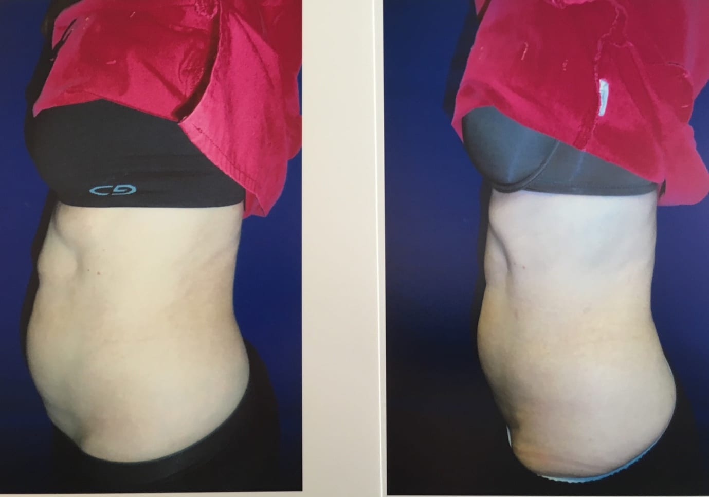 Body Contouring Silver Spring MD