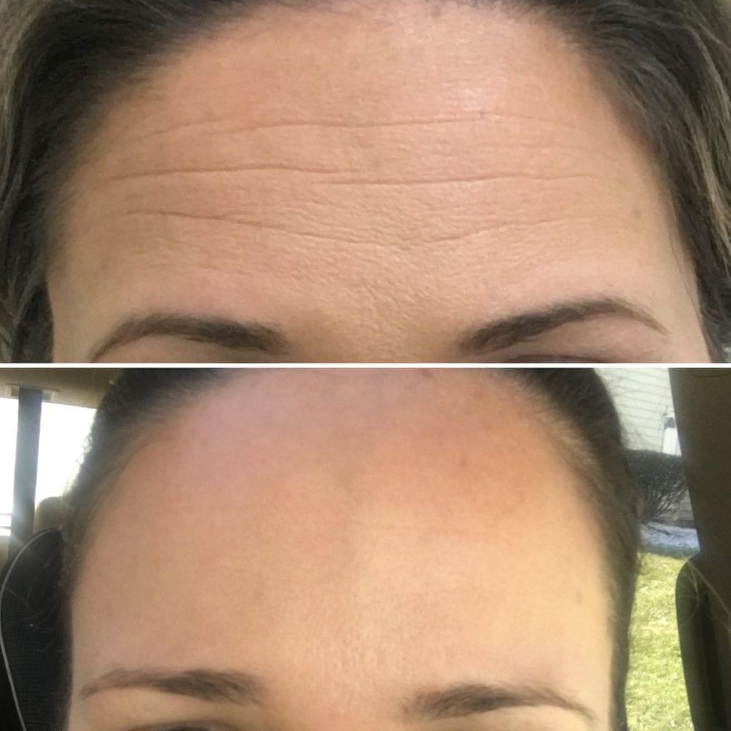 Best Botox Silver Spring