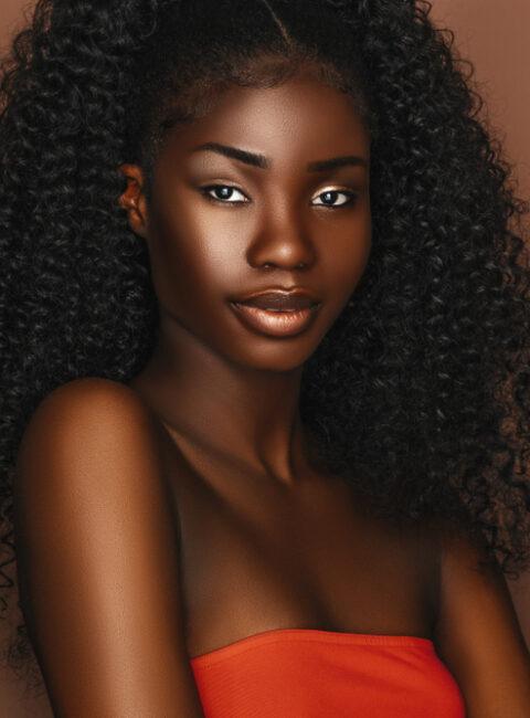 laser hair removal for dark skin